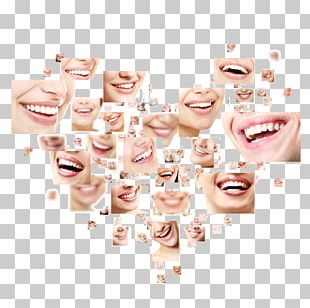 Smile Cosmetic Dentistry Tooth PNG