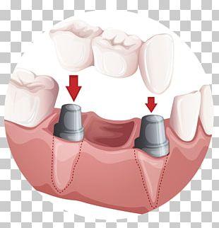 Bridge Dentistry Crown Dental Implant PNG