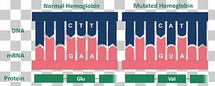 Sickle Cell Disease Glycated Hemoglobin Point Mutation PNG