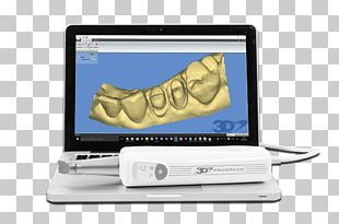 3D Scanner Scanner 3D Computer Graphics Three-dimensional Space Scansione PNG