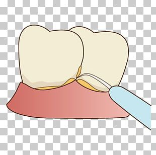 Tooth Decay 歯科 Dentist Periodontal Disease PNG