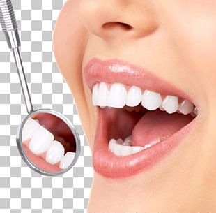 Dentistry Tooth Whitening Human Tooth Crown PNG