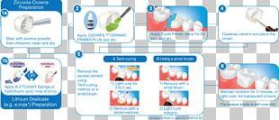 Cementum Dental Composite Inlays And Onlays Veneer PNG
