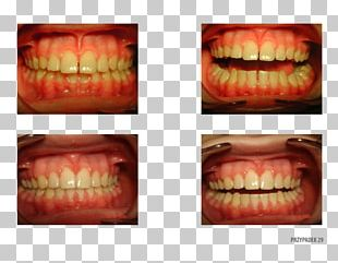 Orange Polska Tooth Patient Therapy PNG