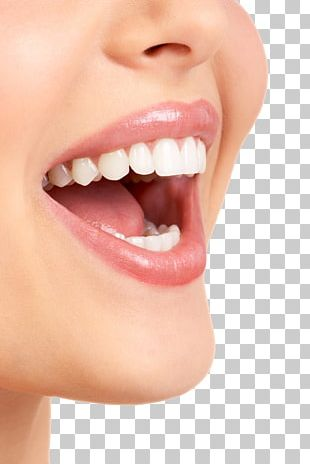 Dentistry Veneer Dental Hygienist Crown PNG