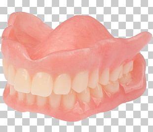 Tooth Dentures AvaDent Art Analog Signal PNG