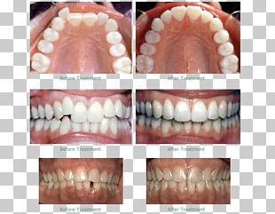 Dentistry Human Tooth Dental Braces Clear Aligners PNG