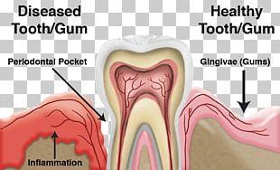 Tooth Periodontal Disease Dentistry Gums PNG