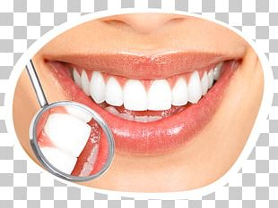 Tooth Whitening Cosmetic Dentistry Human Tooth PNG