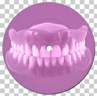 Dentures Dentistry Bridge Dental Implant PNG