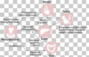 Periodontal Disease Gums Infection Oral Hygiene PNG