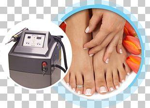 Toe Ring Foot Nail Onychomycosis PNG