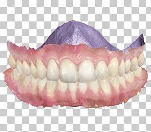 Scanner Dentistry 3Shape Patient PNG