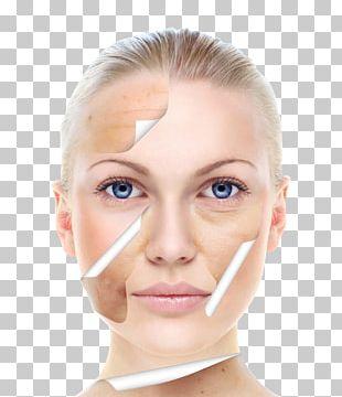 Skin Care Beauty Chemical Peel Facial PNG