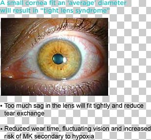 Iris Contact Lenses Cornea Circle Contact Lens PNG