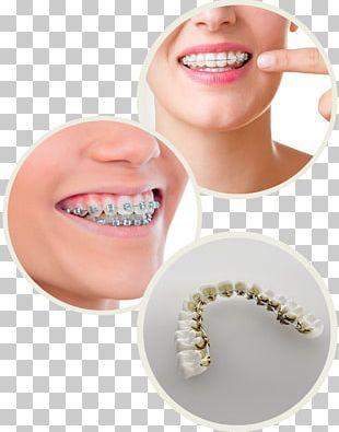 Jaw Tooth Dental Braces Oral Hygiene International Dental Center PNG