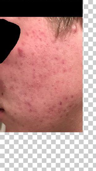 Facial Hair Chin Face Cheek Forehead PNG