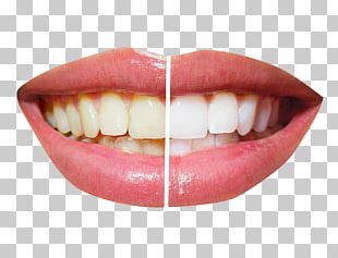 Cosmetic Dentistry Tooth Whitening PNG