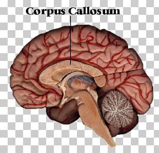 Corpus Callosum Brain Corpus Callosotomy Cerebral Hemisphere Human Body PNG