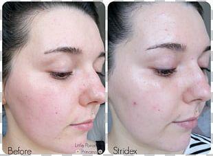 Stridex Maximum Acne Face Skin PNG