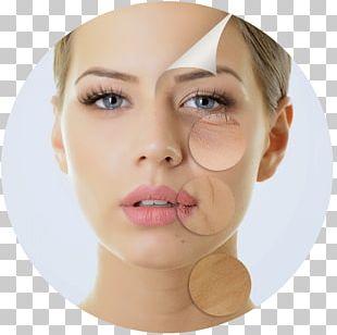 Chemical Peel Skin Wrinkle Facial Exfoliation PNG