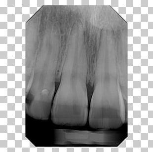 Digital Radiography X-ray Dental Radiography Cone Beam Computed Tomography PNG