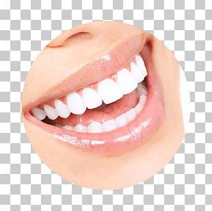 Tooth Whitening Human Tooth Dentistry Veneer PNG