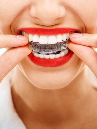 Orthodontics Clear Aligners Dental Braces Retainer Dentistry PNG