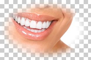 Dentures Dentistry Gums Dental Implant PNG