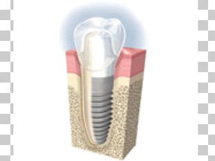 Dental Implant Cosmetic Dentistry Tooth Loss PNG