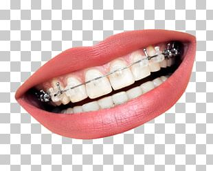 Dental Braces Dentistry Orthodontics Tooth Clear Aligners PNG