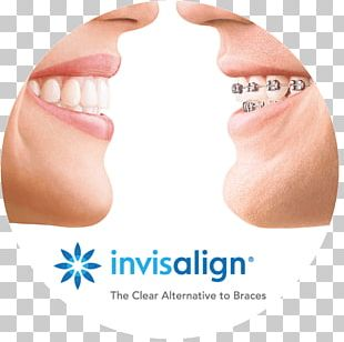 Clear Aligners Dental Braces Orthodontics Dentistry Retainer PNG