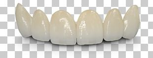 Bridge Crown Dentistry Dentures Tooth PNG