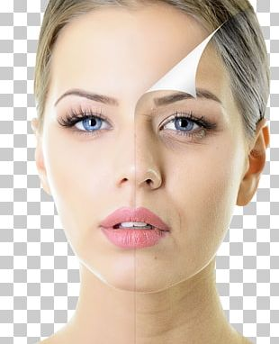 Chemical Peel Skin Care Exfoliation Facial Rejuvenation PNG