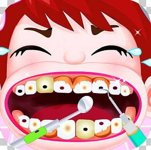 Tooth Decay Child Human Tooth Deciduous Teeth PNG