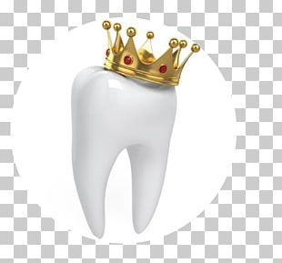 Crown Dentistry Human Tooth PNG