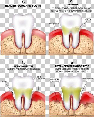 Periodontitis Disease Gums Periodontology Dentistry PNG