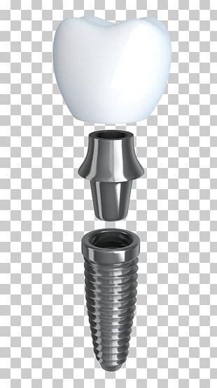 Dental Implant Dentistry Dentures PNG