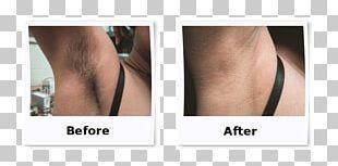Laser Hair Removal Electrolysis PNG