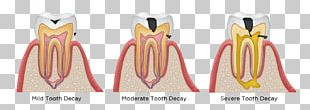 Tooth Decay Human Tooth Dentistry Dental Restoration PNG