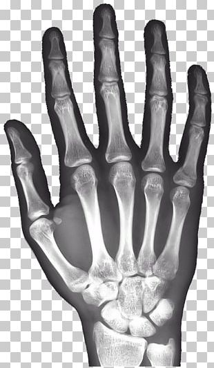 X-ray Hand Carpal Bones Android PNG