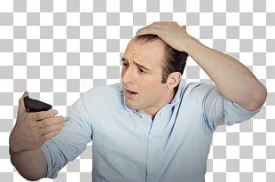 Pattern Hair Loss Hair Care Hair Transplantation PNG