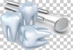 Dentistry Dental Implant Dental Surgery Oral Hygiene PNG