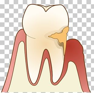Periodontal Disease Gums 歯科 Dentist Dental Plaque PNG