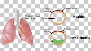 Mucus Blood Hemoptysis Cystic Fibrosis Nose PNG