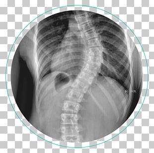 Scoliosis X-ray Vertebral Column Physical Therapy Cobb Angle PNG