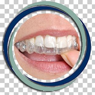 Clear Aligners Dental Braces Orthodontics Dentistry Tooth PNG