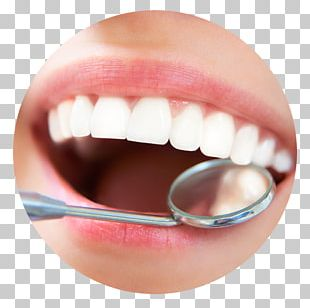 Dentistry Scaling And Root Planing Dental Implant Teeth Cleaning PNG