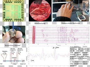 Autonomic Nervous System Neurology Neurological Disorder University Of Minnesota PNG