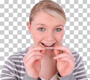 Clear Aligners Dental Braces Dentistry Tooth Orthodontics PNG